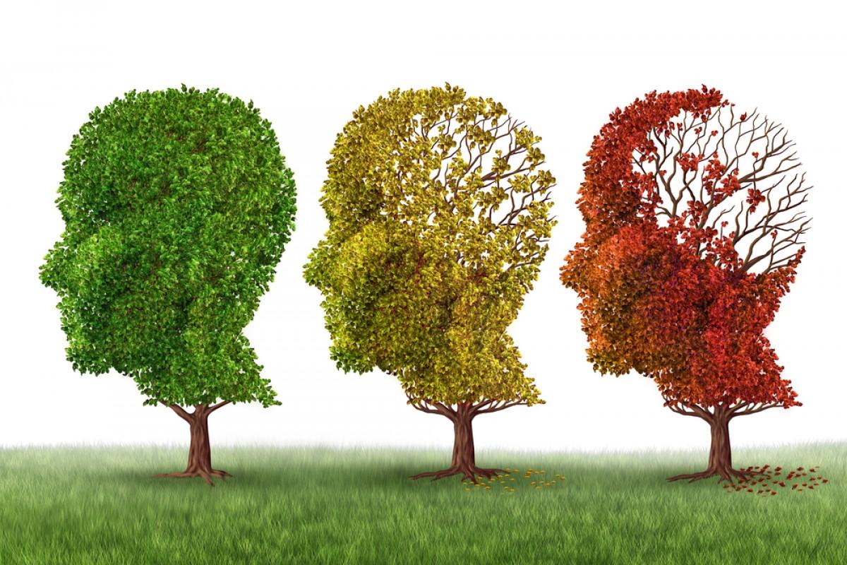 Alzheimer memoria ma migliora la creatività e l'efficienza di alcune aree cerebrali
