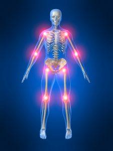 Dolori alle ossa causati dall'evoluzione umana