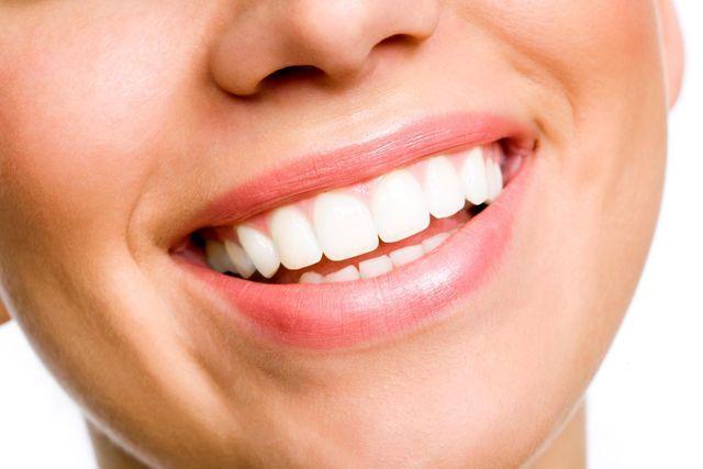 Fragilità dello smalto dei denti, una questione di geni