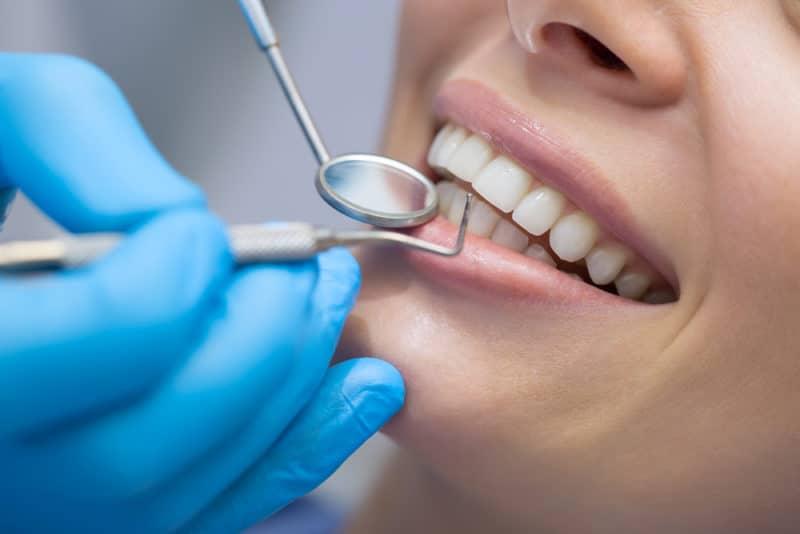 Cure dentali all'estero, i luoghi comuni da smentire