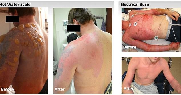 trattamento Ustioni trattamento con la Skin Gun, la Pelle spray