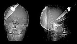 Radiografie strane : Radiografia con coltello nella testa