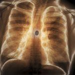 Torace di un paziente di 60 anni con schizofrenia, che mostra un corpo estraneo (24mm di diametro) inserito per via inalatoria in una delle vie aeree (bronchi), del polmone