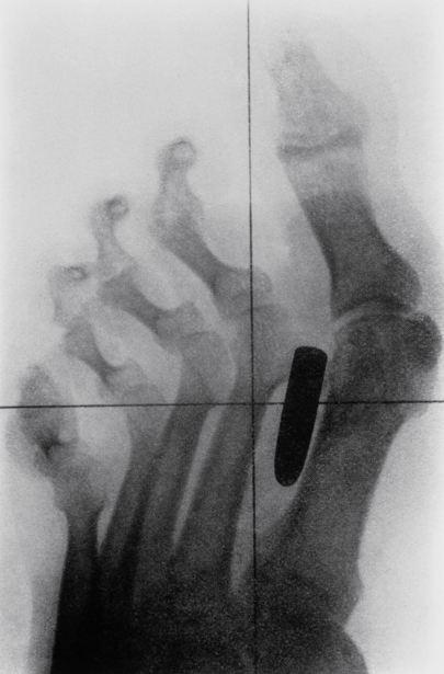 Una storia a raggi X Il piede di un soldato nella guerra anglo-boera (1899-1902) , mostra una ferita da arma da fuoco. Un proiettile Mauser è penetrato tra le ossa del metatarso e l