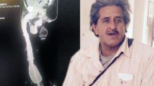 Roberto Esquivel Cabrera pene più lungo al mondo Roberto Esquivel Cabrera